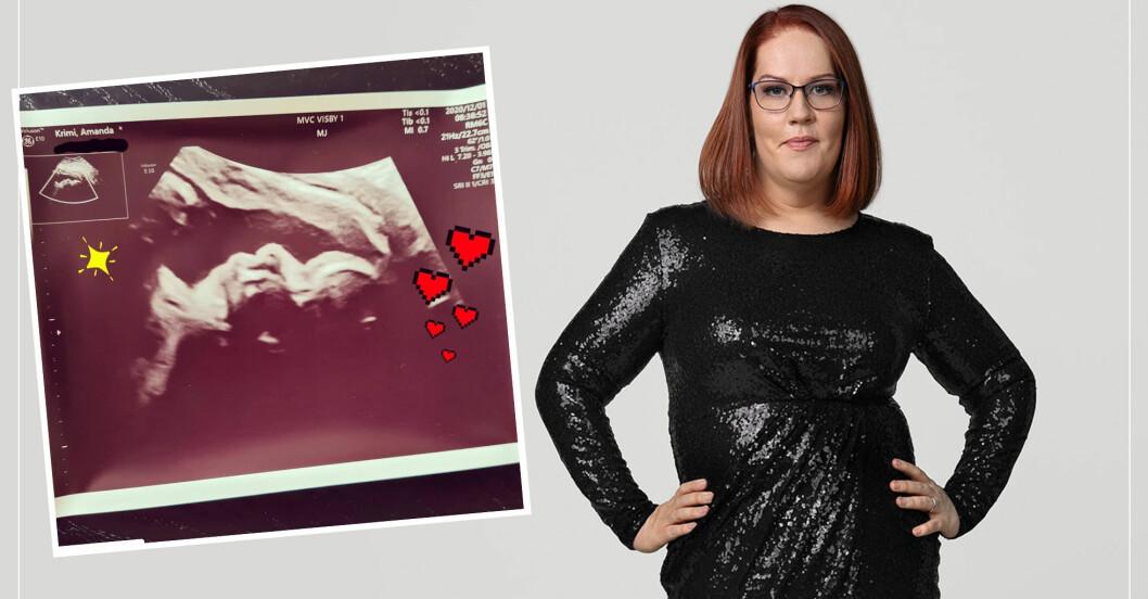 Amanda Krimi gick ner 60 kilo – nu är hon gravid