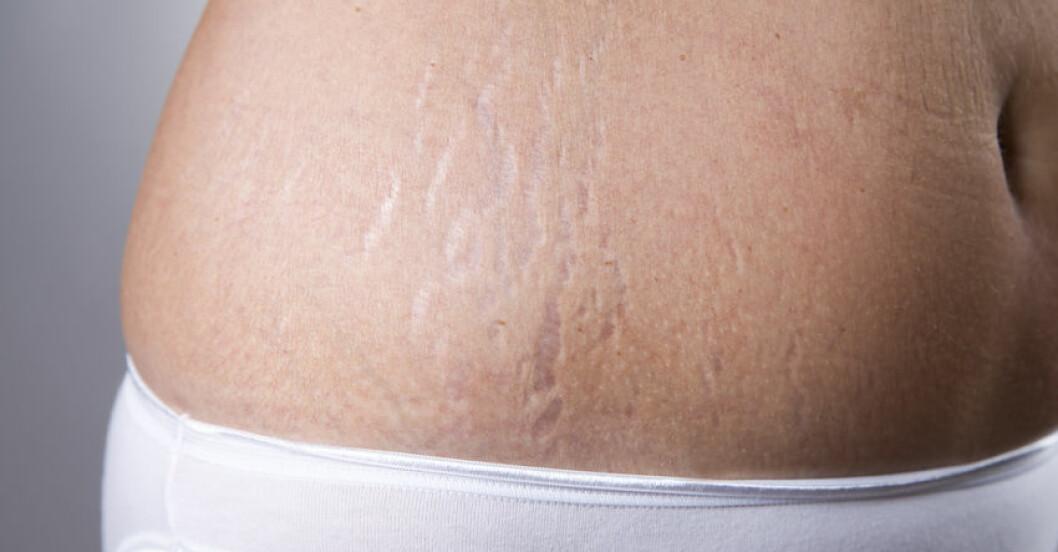 Bristningar, striae, i huden.