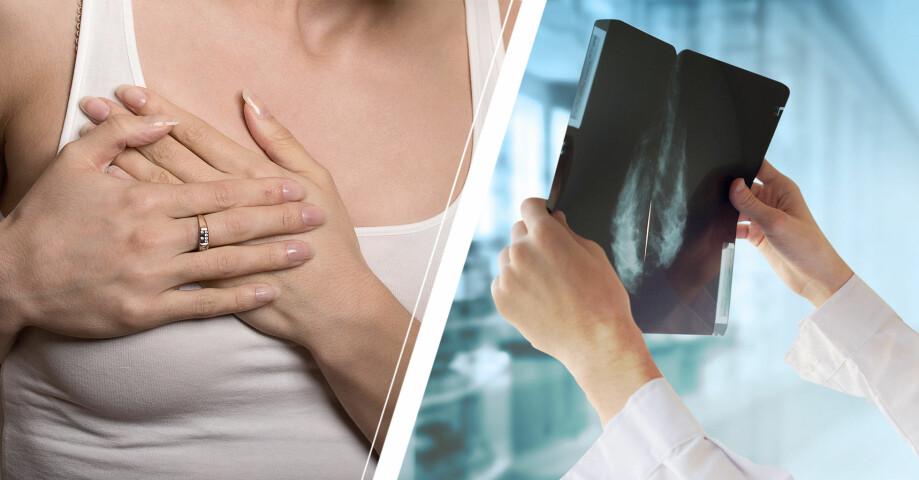 En kvinna som håller sig för bröstet och en röntgenbild från mammografi.