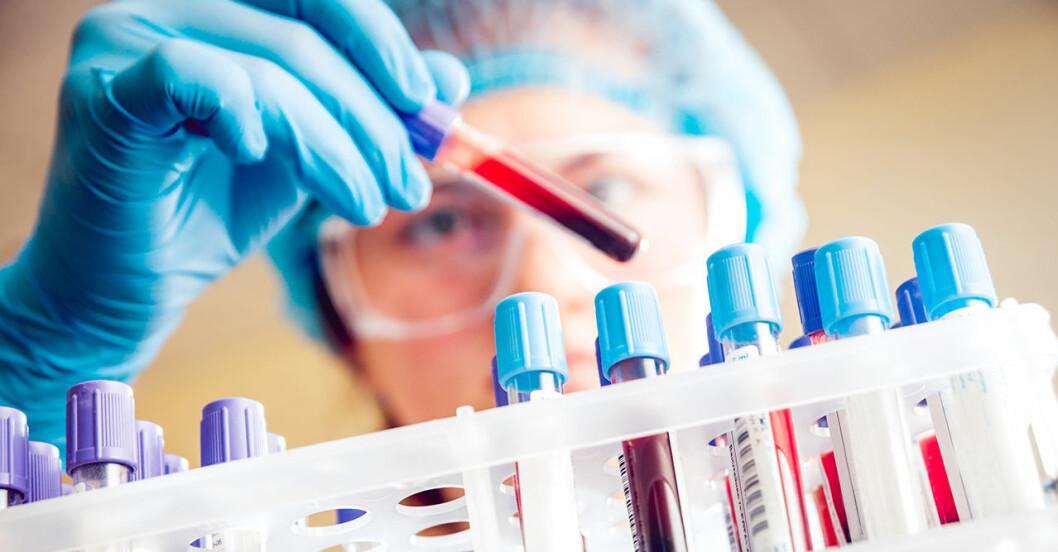 Forskare med skyddsglasögon gransar ett provrör med blod