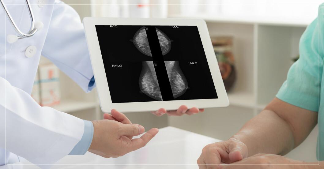 Läkare visar mammografibild för patient