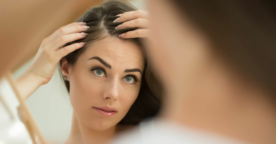 Kvinnligt håravfall går att dölja