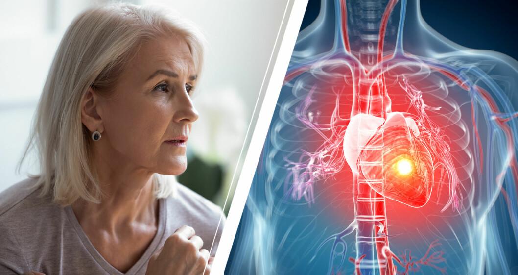 Kvinna med diffusa symtom på hjärtinfarkt.