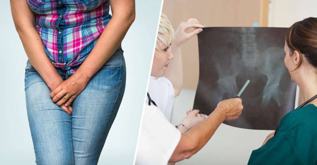 Urininkontinens är inte livshotande – men ett stort problem för många.