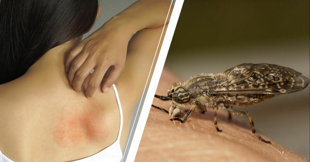 Kvinna som kliar på ett insektsbett och en broms som sitter på huden.