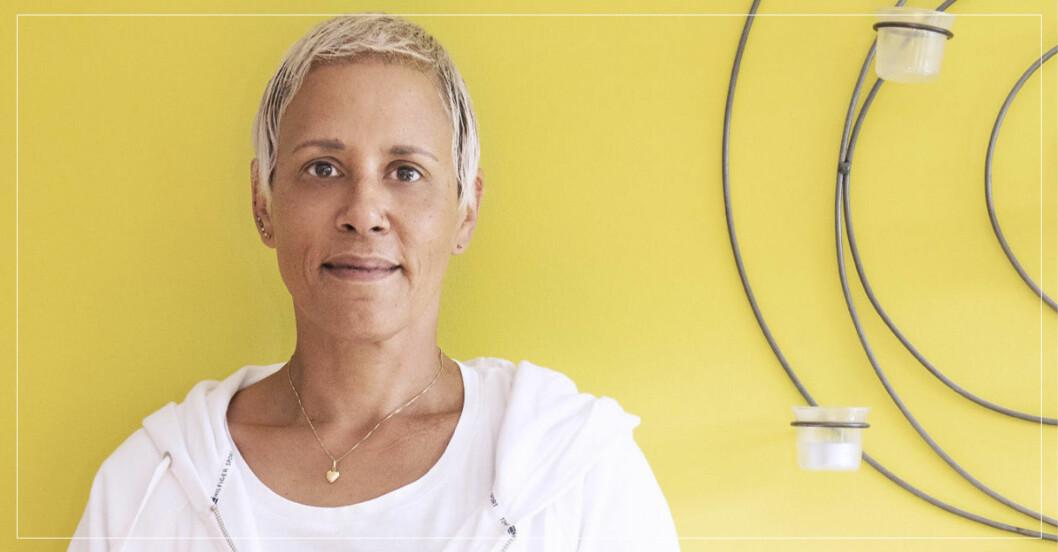 Kim gjorde hårtransplantation