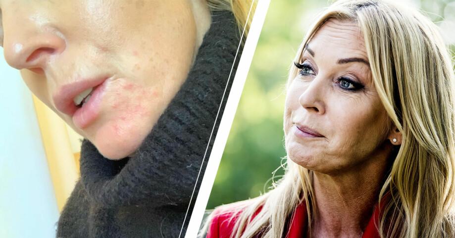 Linda Lindorff hudsjukdom