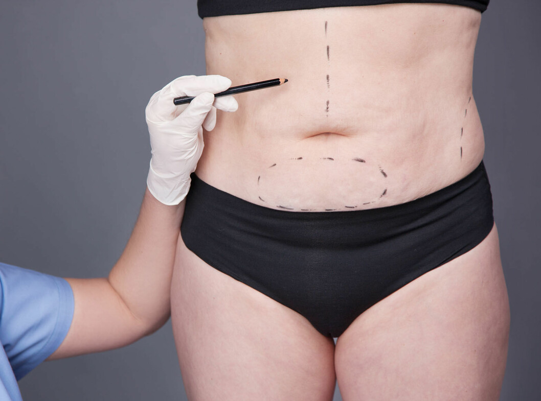 liposuction-cellulites