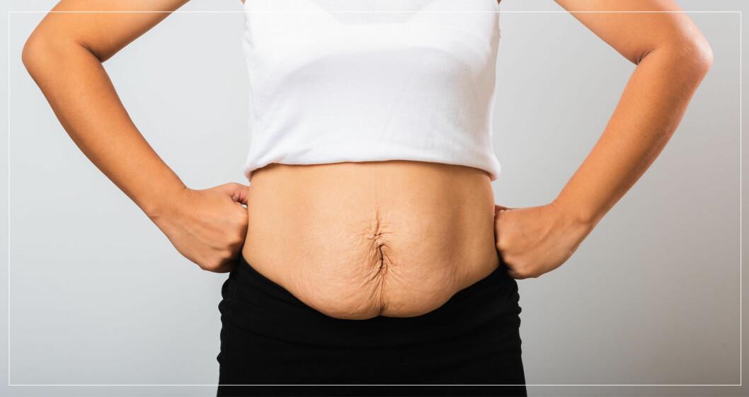 Kvinna med lös hud på magen.