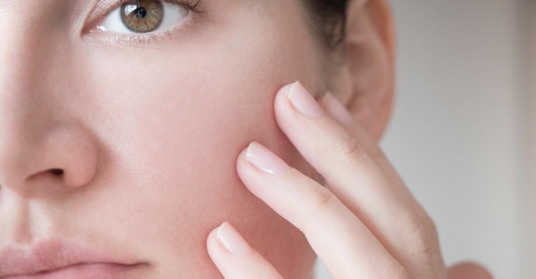 hudsjukdomen rosacea påminner om soleksem