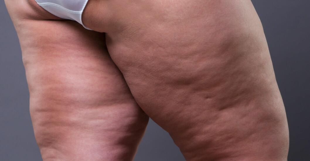 Fettdepåer på ben kan vara den okända sjukdomen lipödem.