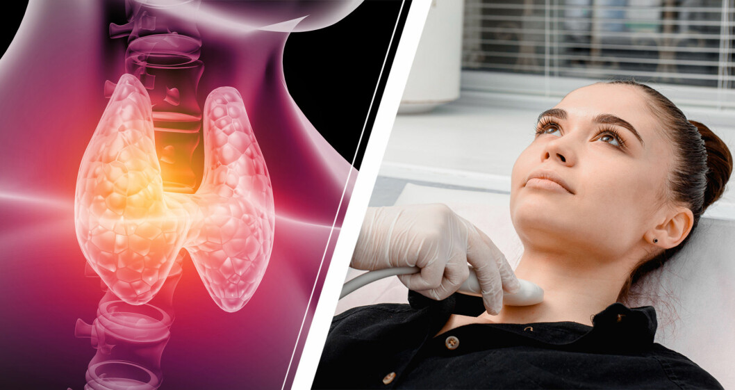 Grafik på sköldkörtel och kvinna som får undersökning.