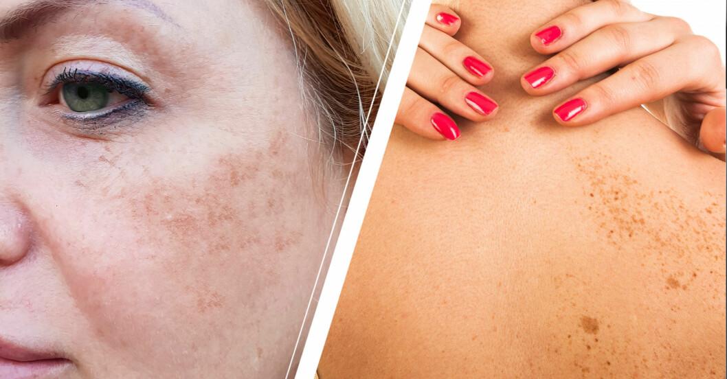 Kvinna med mörka pigmentfläckar i ansiktet och på ryggen