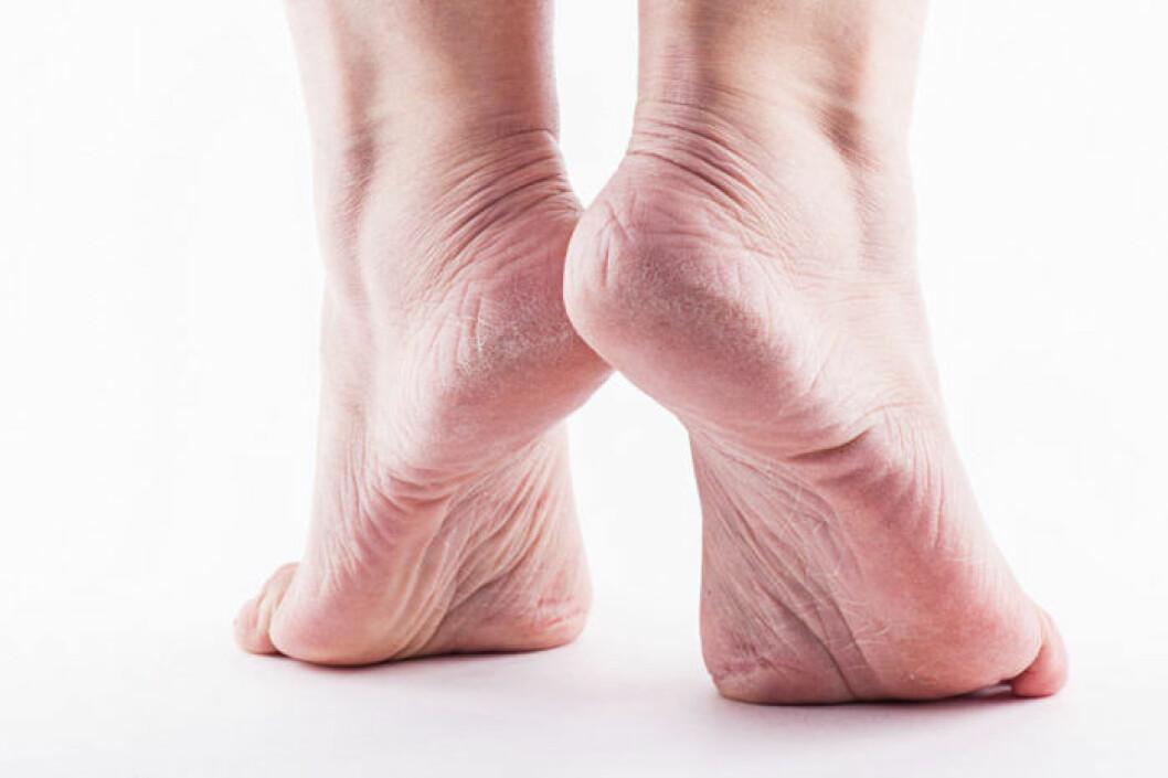 En vanlig orsak till spruckna hälar är att man går i skor som inte håller måttet