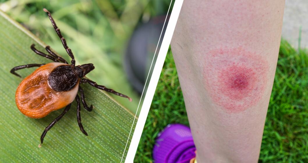 Fästing på grässtrå, och vanligt hudutslag, erytema migrans.