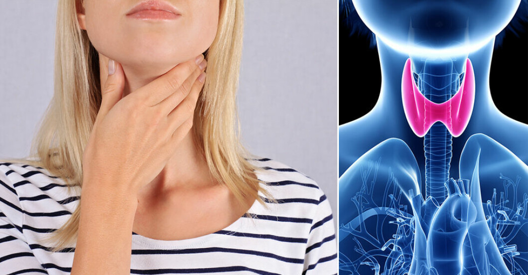 Kvinna håller hand för halsen + bild på sköldkörtel.